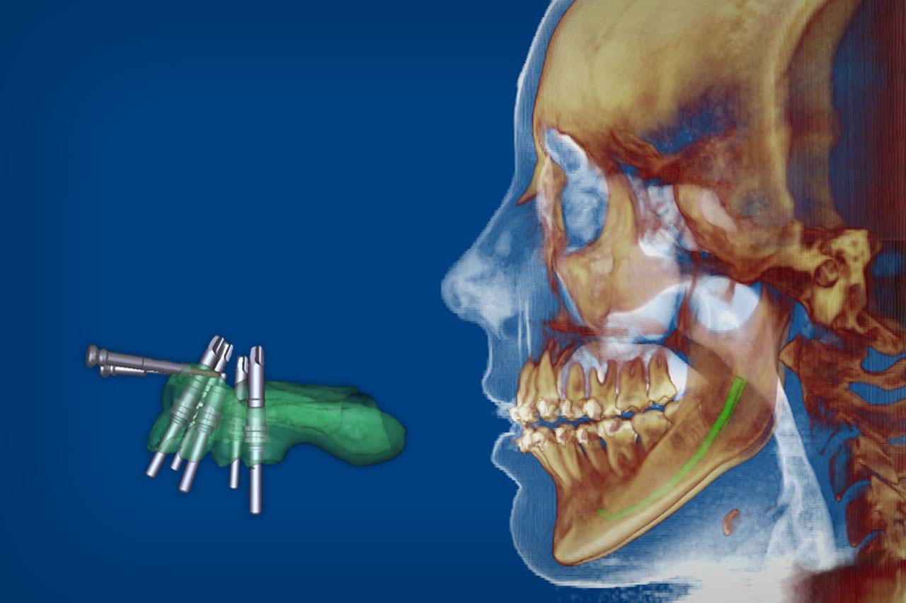 Diagnóstico 3D