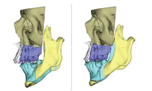 Simulacion 3D por ordenador